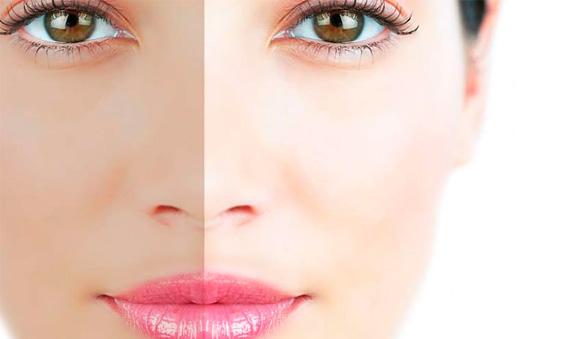 despigmentacion-facial